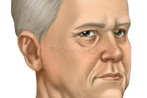 http://www.ricardocalvett.com.br/wp-content/uploads/2017/10/lifting-cervical-antes-300x200.jpg