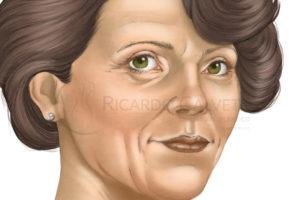 http://www.ricardocalvett.com.br/wp-content/uploads/2017/10/lifting-facial-antes-300x200.jpg
