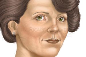 http://www.ricardocalvett.com.br/wp-content/uploads/2017/10/lifting-facial-depois-300x200.jpg